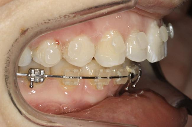 orthodontie avant chirurigie