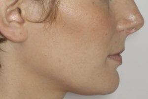 profil après chirurgie et orthodontie