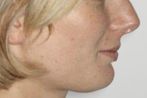 profil avant orthodontie et chirurgie