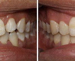 Invisalign avant / après : 3 exemples de traitements avec gouttières transparentes