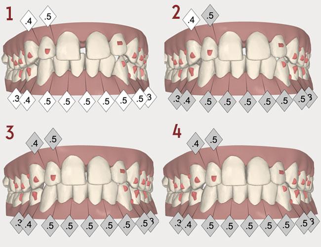 Fermeture des dents du bonheur avec Invisalign