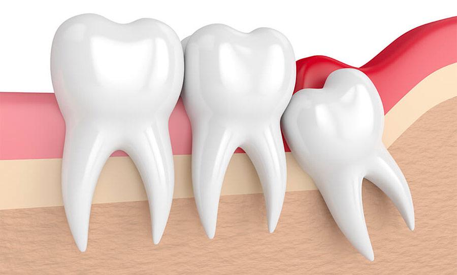 dents de sagesse et récidive