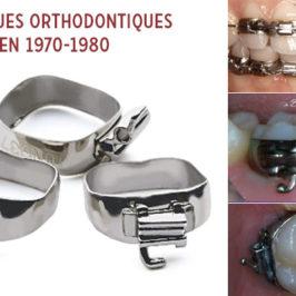 L'orthodontie linguale : historique et développement en France (et en Ile-de-France)