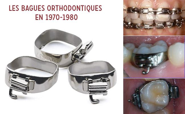 bagues orthodontiques en 1970-1980