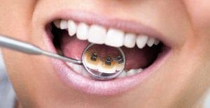 traitement en lingual chez l'adulte