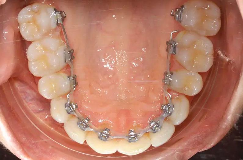 Les bagues sont placées à l'intérieur en orthodontie linguale