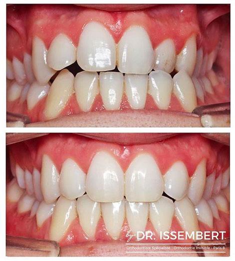 orthodontie linguale avant après par le Docteur Issembert