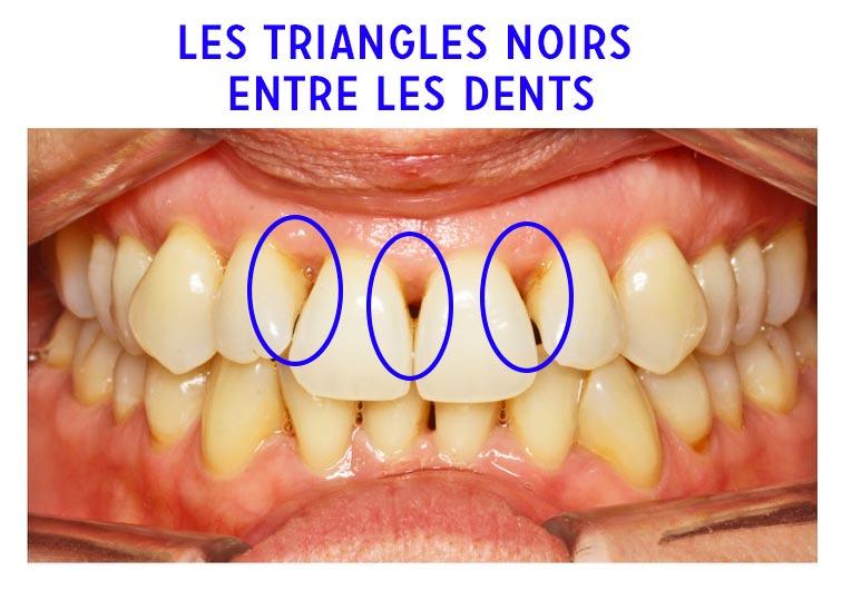 Les triangles noirs entre les dents