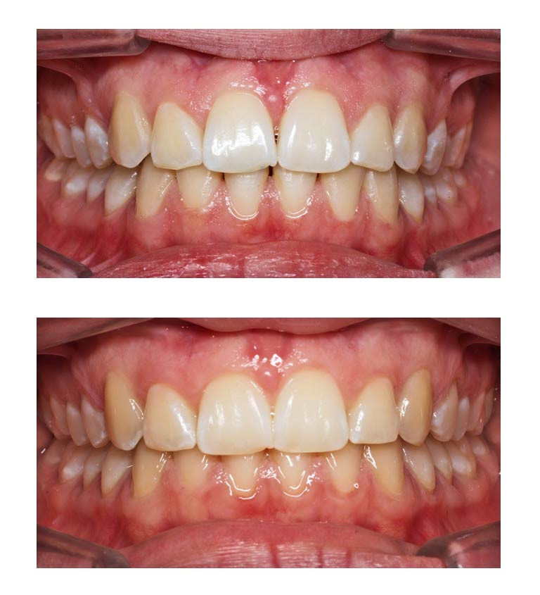 suppression des triangles noirs grâce à l'orthodontie