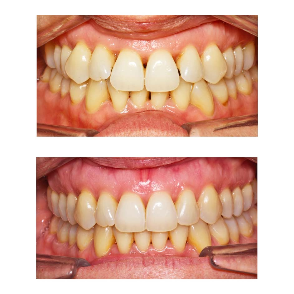 Disparition des triangles noirs après orthodontie