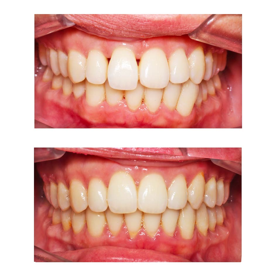 Triangles noirs sur les dents et orthodontie