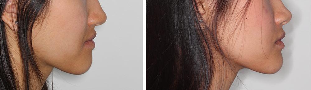 avancement mâchoire inférieure et recentrage avant après vue de profil