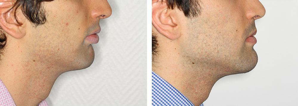 avancement mâchoire et menton avant après profil