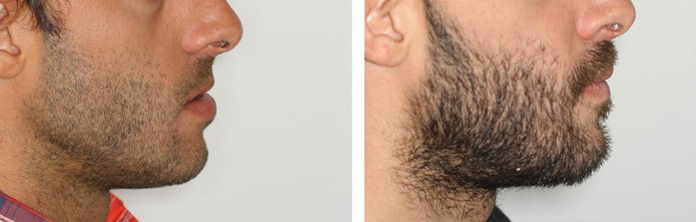 avancement maxillaire recentrage avant après profil