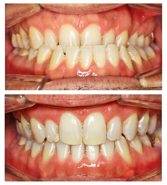 avancement maxillaire recentrage avant après photo intrabuccale
