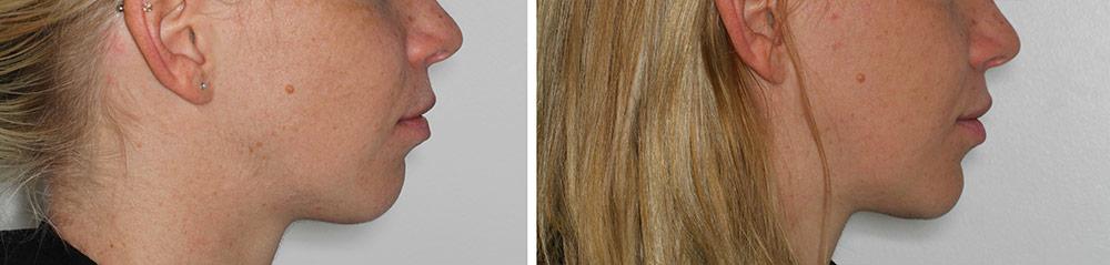 béance chirurgie de rotation avant et après profil