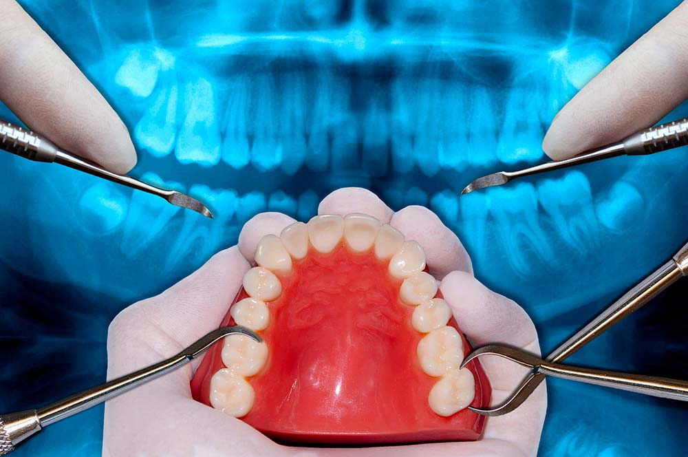 orthodontie etchirurgie
