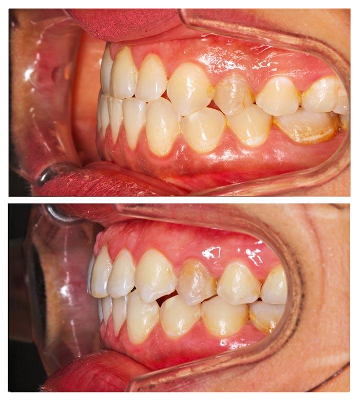 patiente avant après chirurgie avancement mâchoire