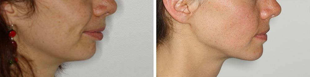 profil avant après chirurgie mâchoire en recul