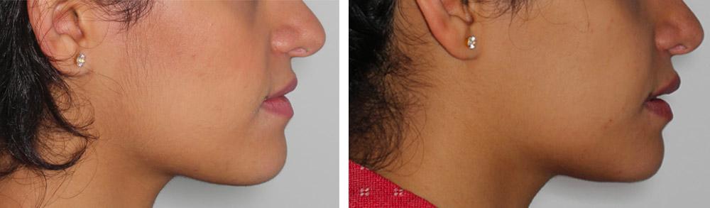 patiente avant après chirurgie avancement mâchoire profil
