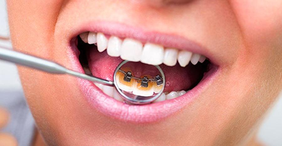 bagues linguales sur la face interne des dents