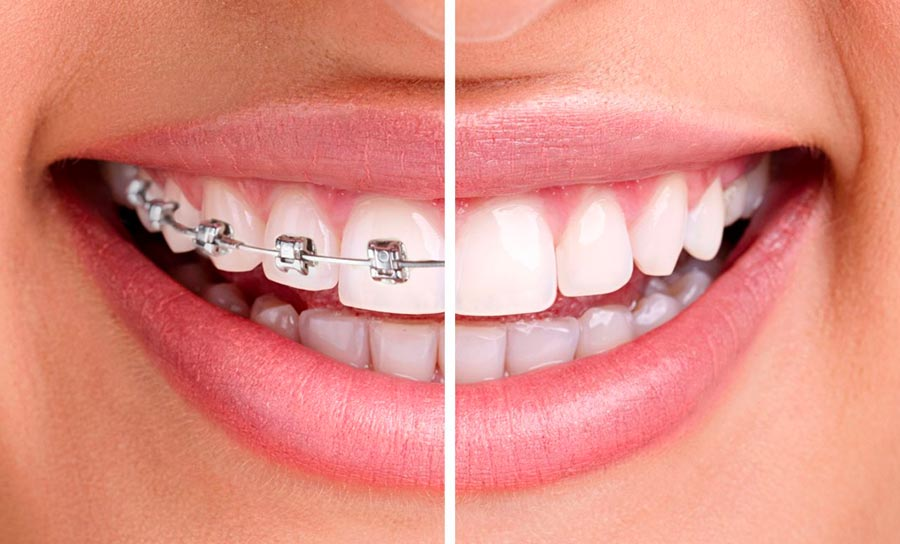orthodontie visible ou invisible