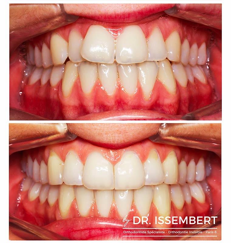 photo avant et après traitement Invisalign