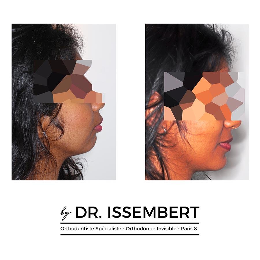 traitement Invisalign avant après avec chirurgie