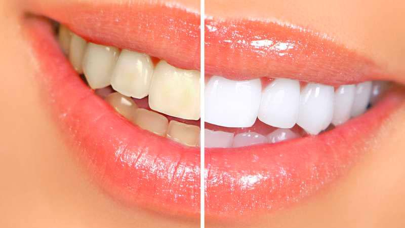 blanchiment des dents après orthodontie