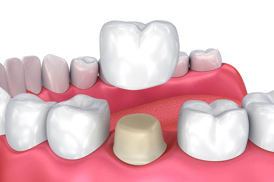couronne et orthodontie