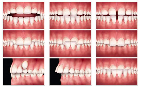 malocclusions-orthodontie